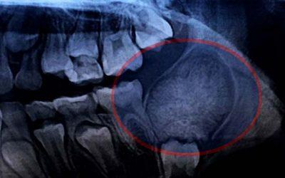 Cirujano maxilofacial realiza inédita en Hospital de San Fernando