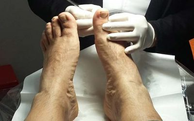 Los peligros del pie diabético y cómo tratarlo