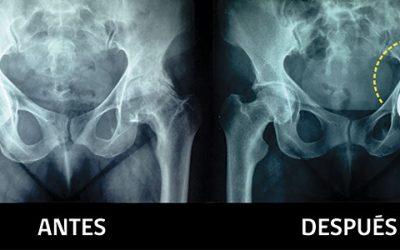 Programa de prótesis de caderas se cumplirá en tiempo récord