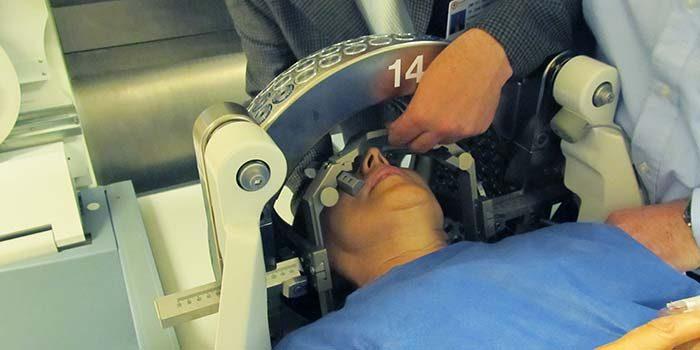 La radiocirugía, opción para tratar la neuralgia del trigémino