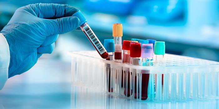tubos de ensayo cancer leucemia