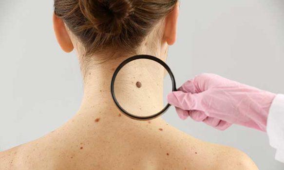 Consejos para prevenir el cáncer a la piel